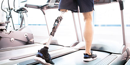 photograph of a male amputee walking with their prosthetic leg on a treadmill to improve mobility